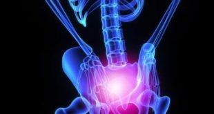 مفصل ران تحریک پذیر 1