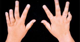 Juvenile-rheumatoid-arthritis-Picture