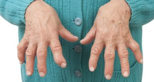 آرتریت روماتوئید 4