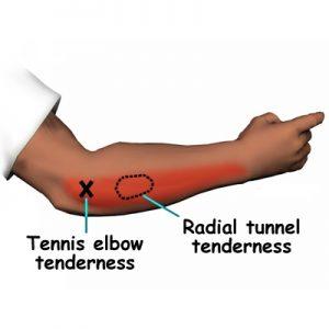 سندروم تونل رادیال 5