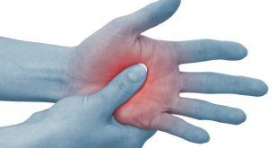 سندروم درد منطقه ای پیچیده 3