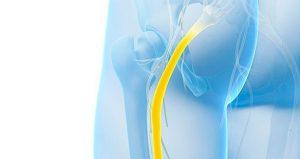 درد سیاتیک 1