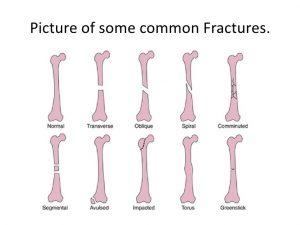 شکستگی های استخوان 1