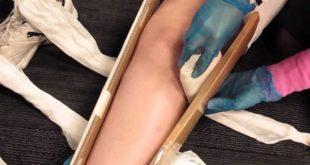 شکستگی های استخوان 123