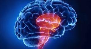 عوامل و درمان فلج مغزی