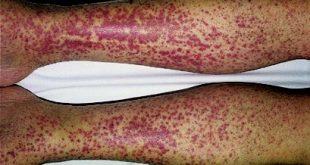بیماری-واسکولیت-و-علائم-آن-چیست؟