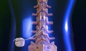 مهمترین علل بیماری تنگی کانال نخاعی