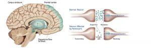 پارکینسون: انحطاط و مرگ نورون ها