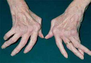 روماتیسم مفصلی یا آرتریت روماتوئید چیست ؟