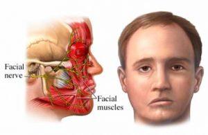 درمان فلج بلز –فلج یک طرفه غضلات صورت