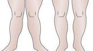 چرا پای برخی شبیه ضربدر است؟