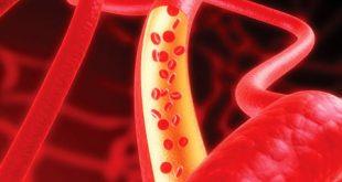 التهاب عروق یا واسکولیت چیست؟