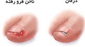 فرورفتن ناخن پا در گوشت و رهایی از درد آن