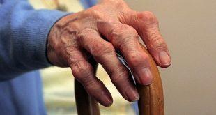 هر آنچه باید در بررسی بیماری آرتریت روماتوئید بدانیم! RA!