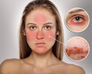 بیماری لوپوس، بیماری (سلنا گومز) را بشناسیم!