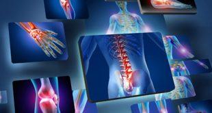 علت دردهای مفصلی