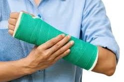 شکستگی استخوان مچ دست