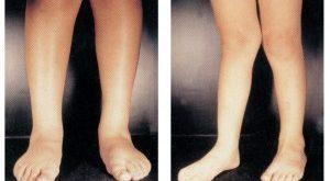 پای ضربدری یا ژنووالگوم