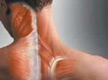 رگ به رگ شدن و کشیدگی عضلات گردن