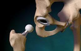 عمل جراحی تعویض مفصل لگن و ران