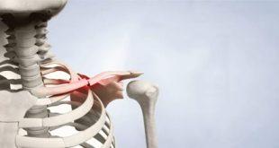 درمان های دارویی و جراحی برای شانه درد