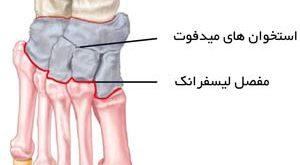 آسیب های لیسفرانک