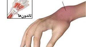التهاب غلاف اطراف تاندون