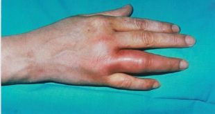 مؤثرترین درمان آرتریت