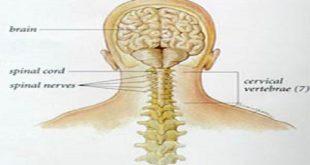 شدیدترین گردن درد