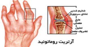 مهم ترین علائم آرتریت رماتوئید