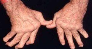 مهمترین پرسش ها در مورد آرتریت روماتوئید