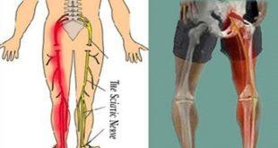 مهمترین علل درد سیاتیک