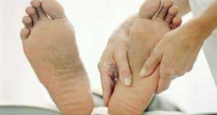 بهترین درمان سندرم کوبوئید