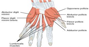 شدیدترین گرفتگی عضلات