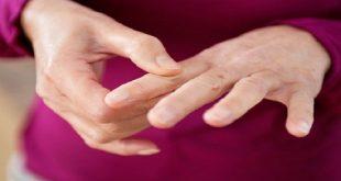 مهمترین بیماری های التهابی