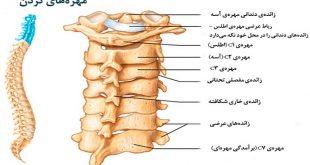 مؤثرترین درمان گردن درد