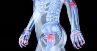 مؤثرترین روش های تشخیص آرتریت