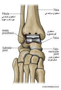 بهترین و موثرترین تست ارتوپدی فیزیوتراپی قوزک ساختار قوزک پا