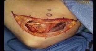بهترین درمان برای سندرم تونل کوبیتال