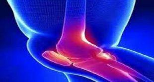 بهترین دارو برای مفصل زانو