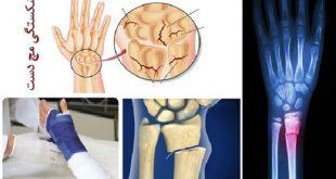 مهمترین علل شکستگی