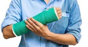 مهمترین علائم شکستگی