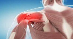 بهترین درمان shoulder blade pain