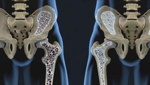 بهترین راههای-افزایش-تراکم-استخوان