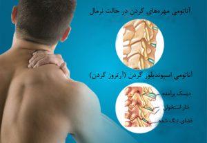 فیزیوتراپی برای گردن درد در کلینیک شایگان مهر