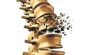 کاهش سرعت پوکی استخوان