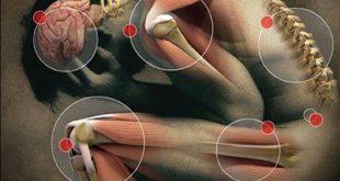 کاهش درد مزمن مفصلی و آرتریت