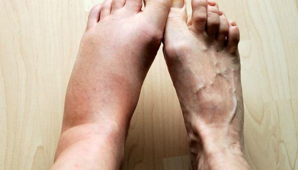 ورم مچ پا چه عللی دارد؟