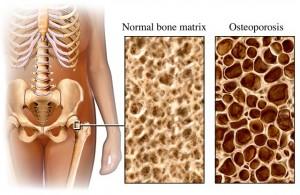 آزمایش تراکم استخوان برای چه کسانی انجام می شود؟