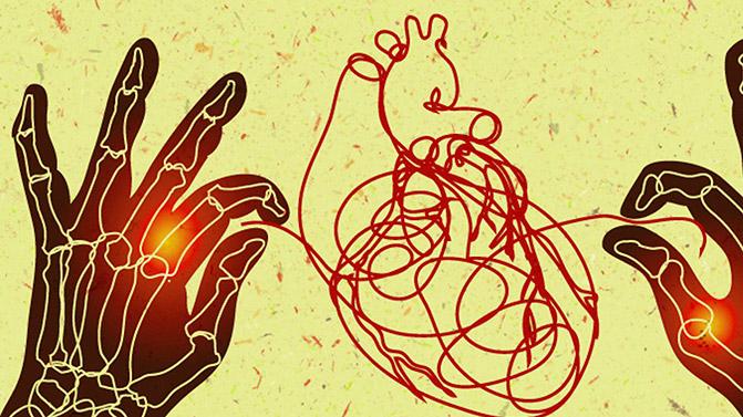 افراد مبتلا به آرتریت التهابی مثل آرتروز ، لوپوس و آرتریت روماتوئید به بیماری های قلبی مبتلا می شوند.